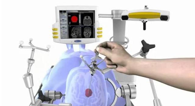 Foto Ilustrativa de um neuro navegador utilizado para retirada de tumores cerebrais.