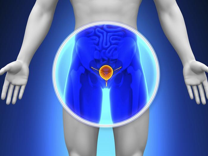 A próstata é um órgão do trato genital masculino localizado na pelve do homem.