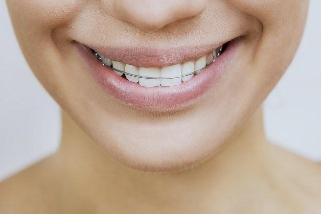 A contenção dentária é muito importante para completar o tratamento ortodôntico.