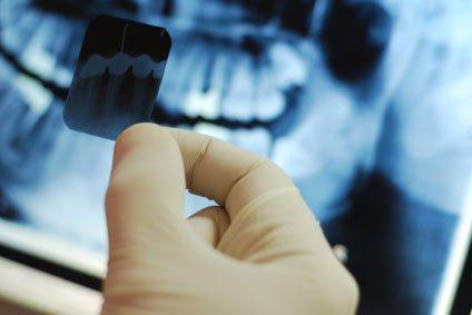 O Raio-X é uma ferramenta que ajuda o dentista em seu diagnóstico, e não tem efeito colateral.
